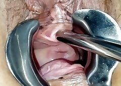 Peehole and speculum play